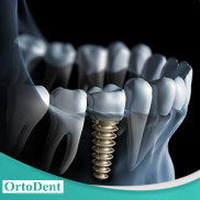 <!--:en-->Implantology<!--:--><!--:pl-->Implantologia<!--:-->